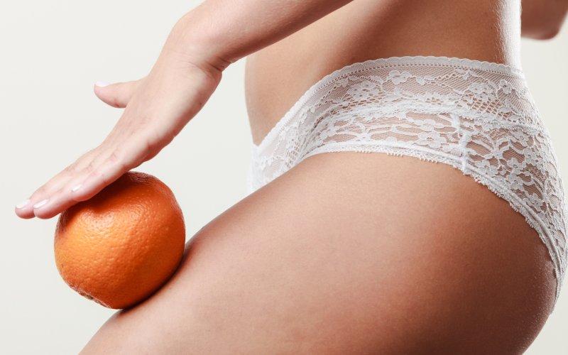 Celulitida může vzniknout u každé ženy. Zdroj: Voyagerix / Shutterstock, Inc.