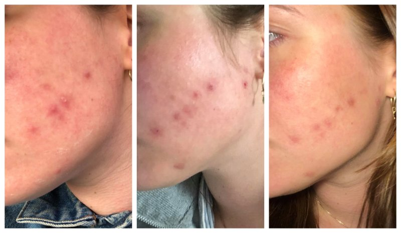 Během jednoho týdne se má hodně zanícená tvář vrátila do normálního zdravého stavu. Zdroj: Redakce
